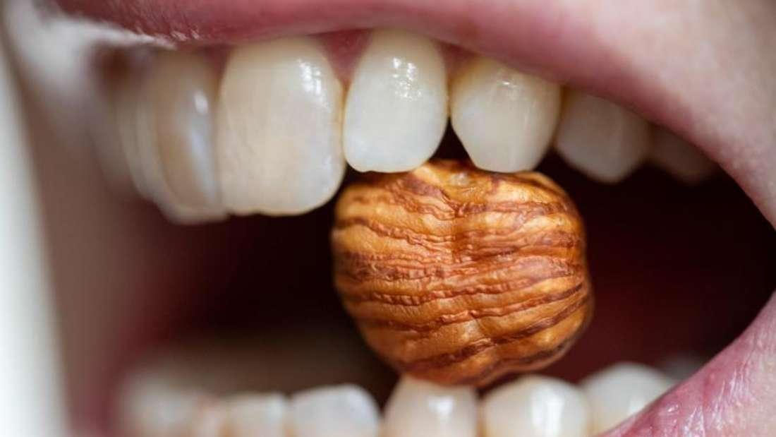 Nüsse und andere Lebensmittel können bei einigen Menschen Allergien auslösen (Symbolbild).