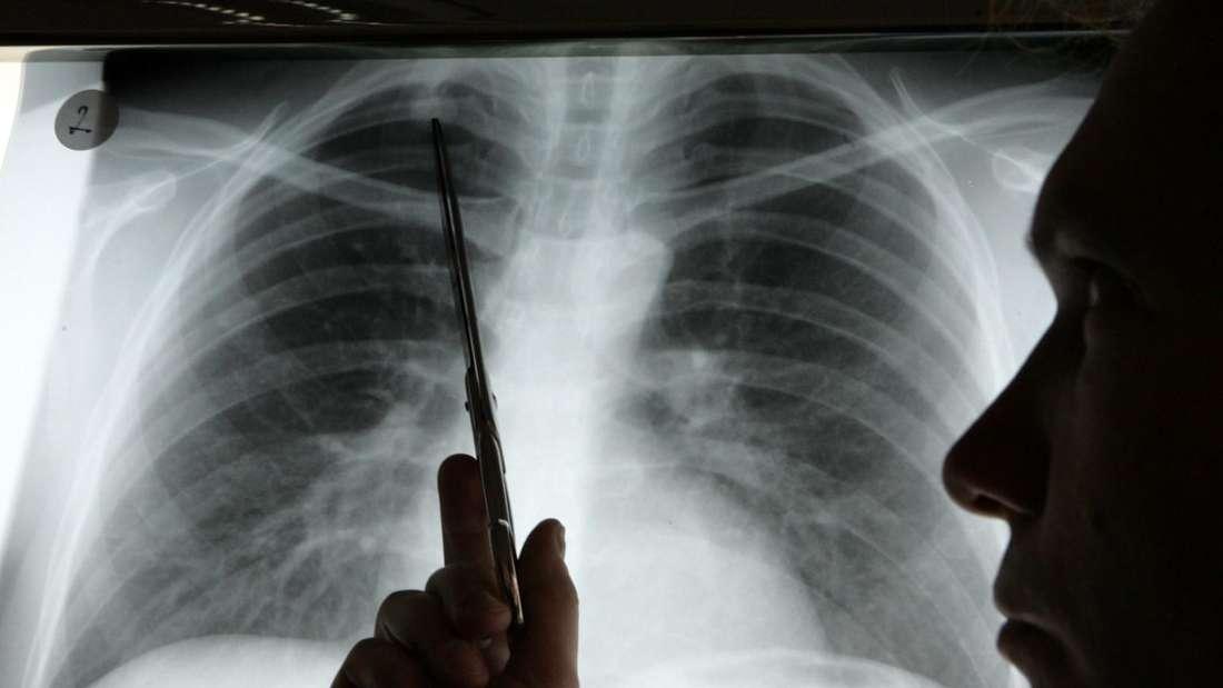 Ein Arzt zeigt das Röntgenbild einer Lunge (Symbolbild).